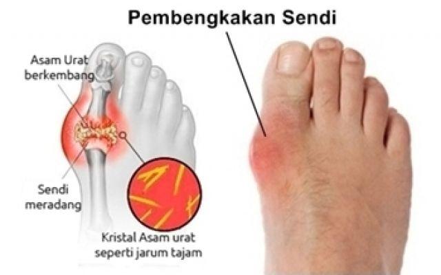 Penyebab sakit persendian