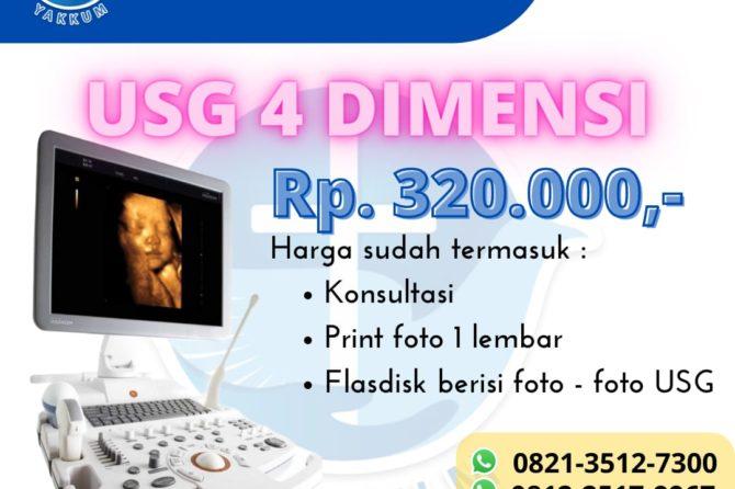USG 4 Dimensi